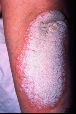 Chronic plaque psoriasis