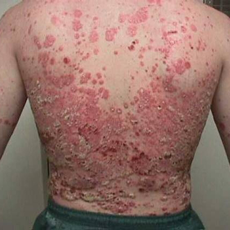 can you develop psoriasis