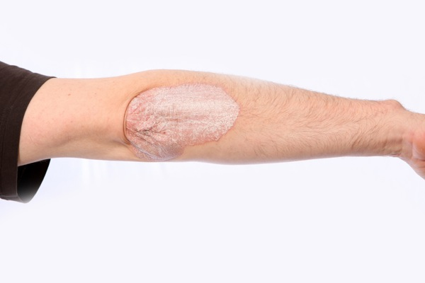 Psoriasis on the ellbow