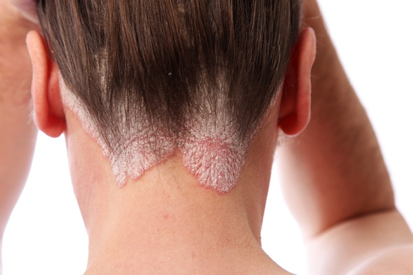 Psoriasis on the neck!