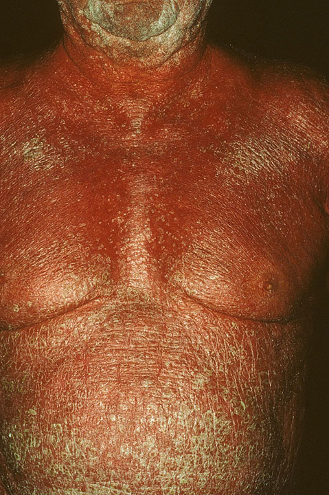 Afebrile (except in pustular or erythrodermic psoriasis, in which the patient may have high fever) 2