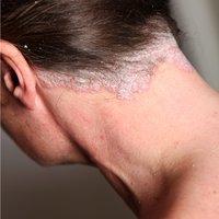 howpsoriasislook-scalp