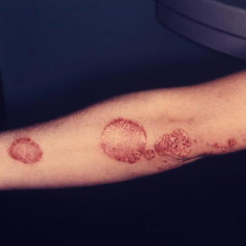 Plaque psoriasis on the ellbow