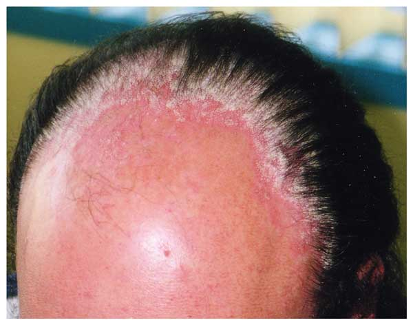 Psoriasis Scalp Formula Hair Loss Helps To Restore Growth.