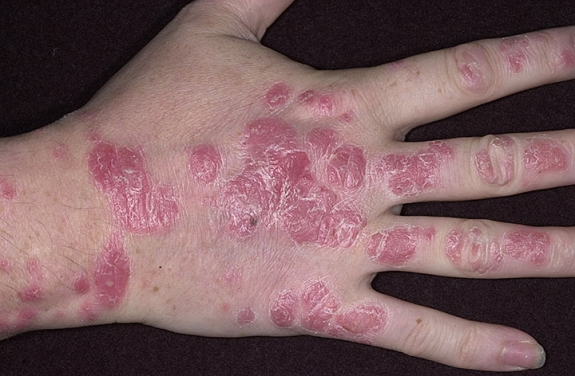 Psoriasis on Hand Includes Psoriasis on the Palm, Knuckles