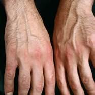 psoriaticarthritis