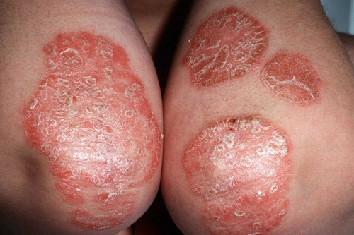 Stress related Psoriasis