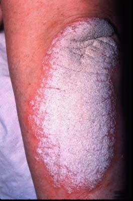 Cronic plaque psoriasis