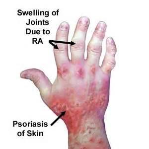 psoriasis arthritis, swollen joints,