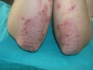 Psoriasis on the ellbows