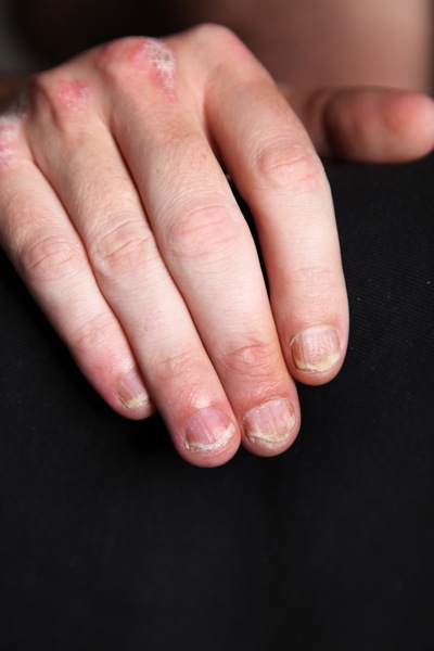Psoriasis on the right hand