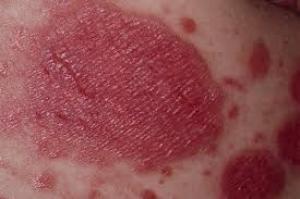 Genital psoriasis